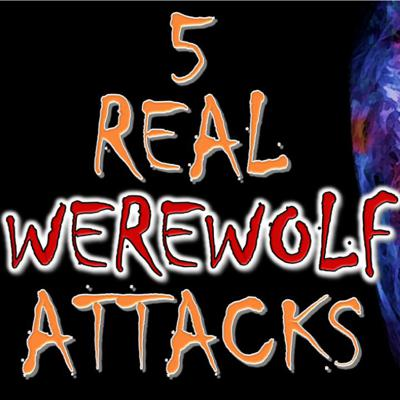 Cover art for 5 REAL Werewolf Attacks